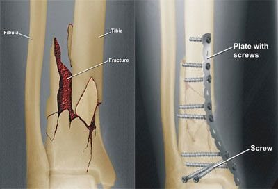 Broken Ankle Surgery