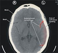 Subarachnoid Hemorrhage Brain Injury