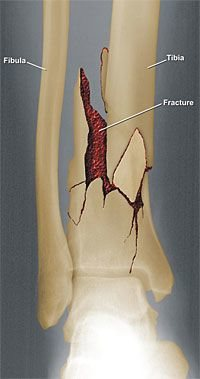 Right Leg Fracture